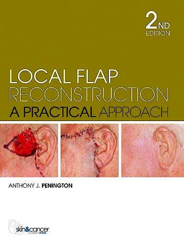 Portada del libro 9780070278387 Local Flap Reconstruction. a Practical Approach