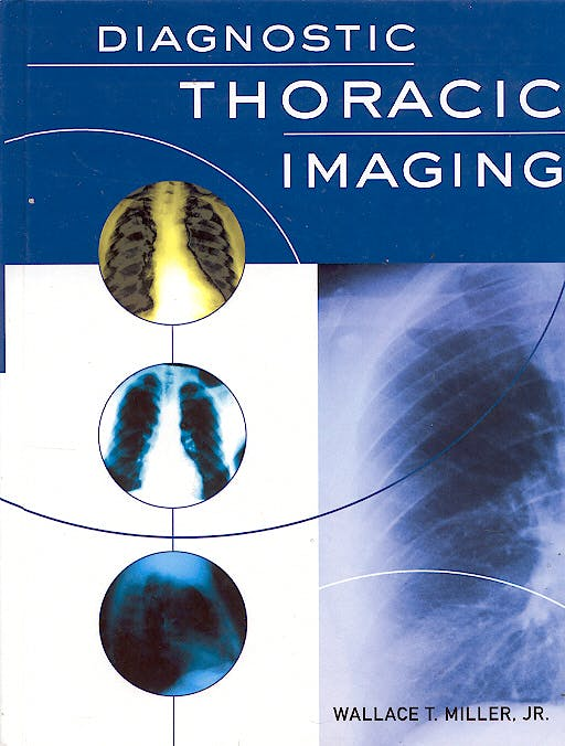Portada del libro 9780071413008 Diagnostic Thoracic Imaging