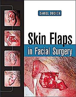 Portada del libro 9780071459433 Skin Flaps in Facial Surgery