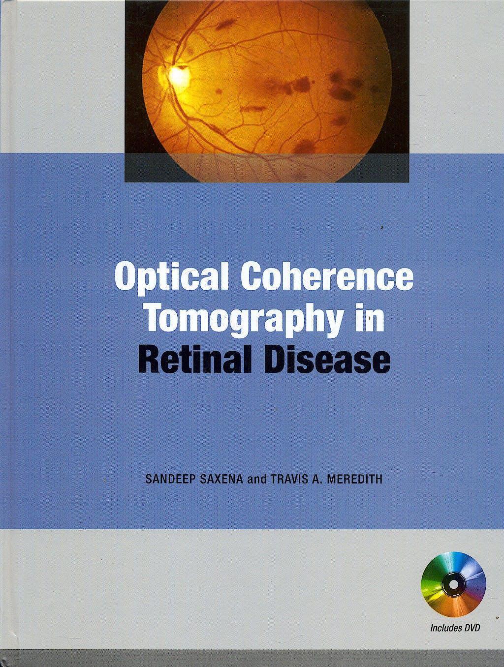 Portada del libro 9780071601870 Optical Coherence Tomography in Retinal Disease + Dvd