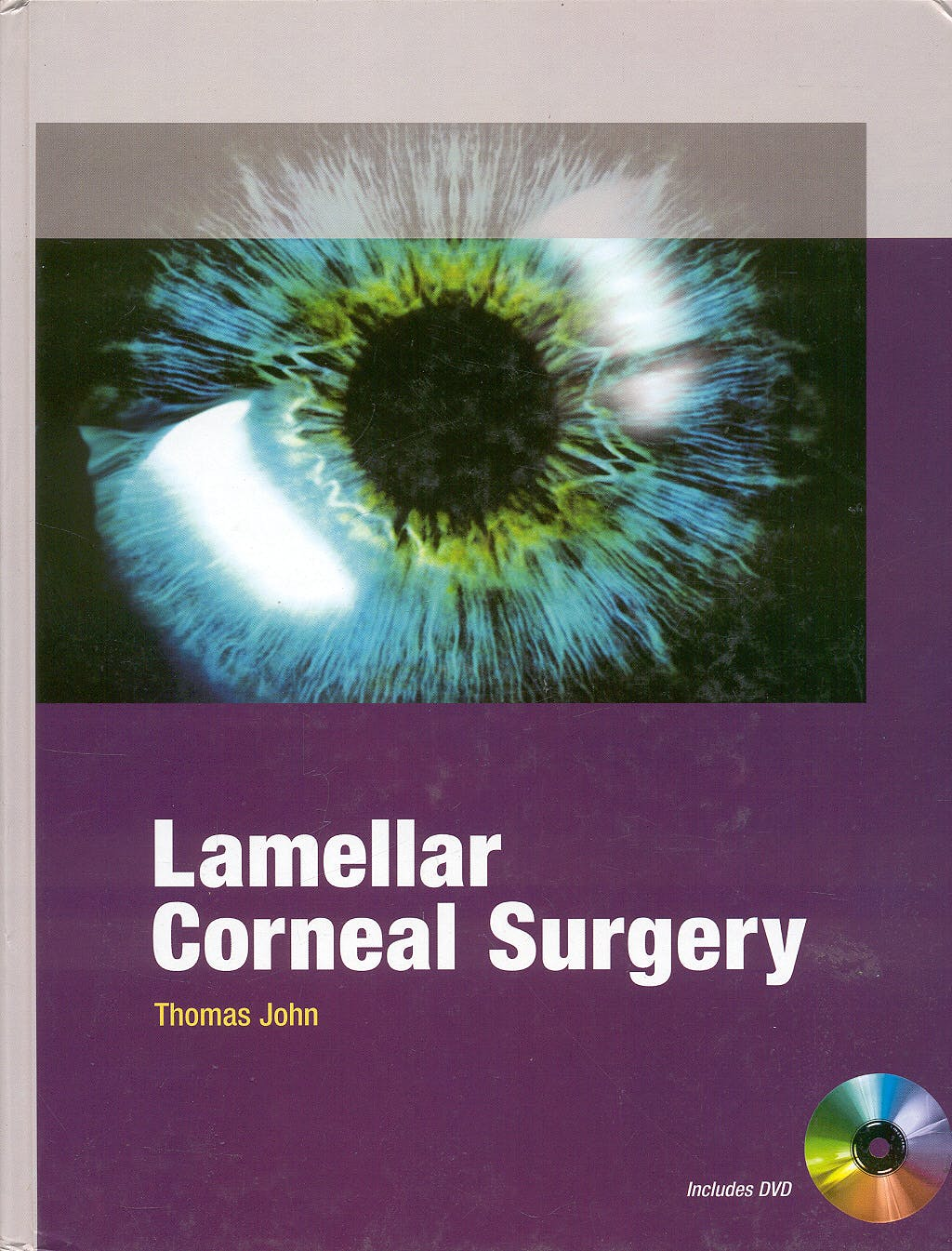 Portada del libro 9780071601924 Lamellar Corneal Surgery + Dvd