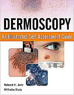 Portada del libro 9780071613552 Dermoscopy. an Illustrated Self-Assessment Guide