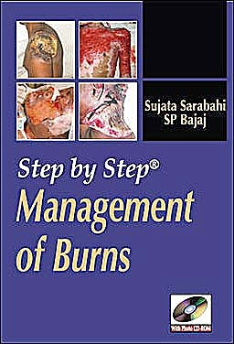 Portada del libro 9780071634304 Step by Step Management of Burns
