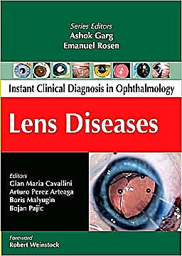 Portada del libro 9780071667210 Instant Clinical Diagnosis in Ophthalmology. Lens Diseases
