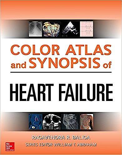 Portada del libro 9780071749381 Color Atlas and Synopsis of Heart Failure