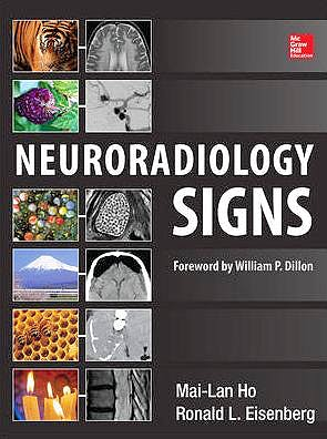 Portada del libro 9780071804325 Neuroradiology Signs