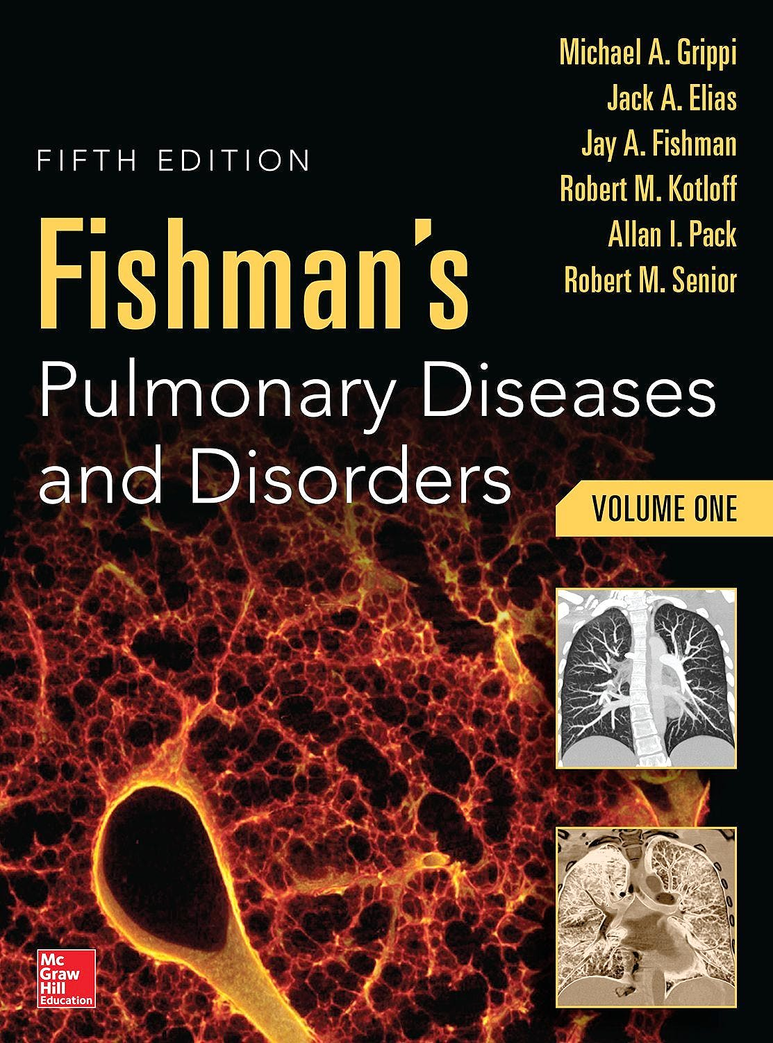 Portada del libro 9780071807289 Fishman's Pulmonary Diseases and Disorders (2 Volume Set)