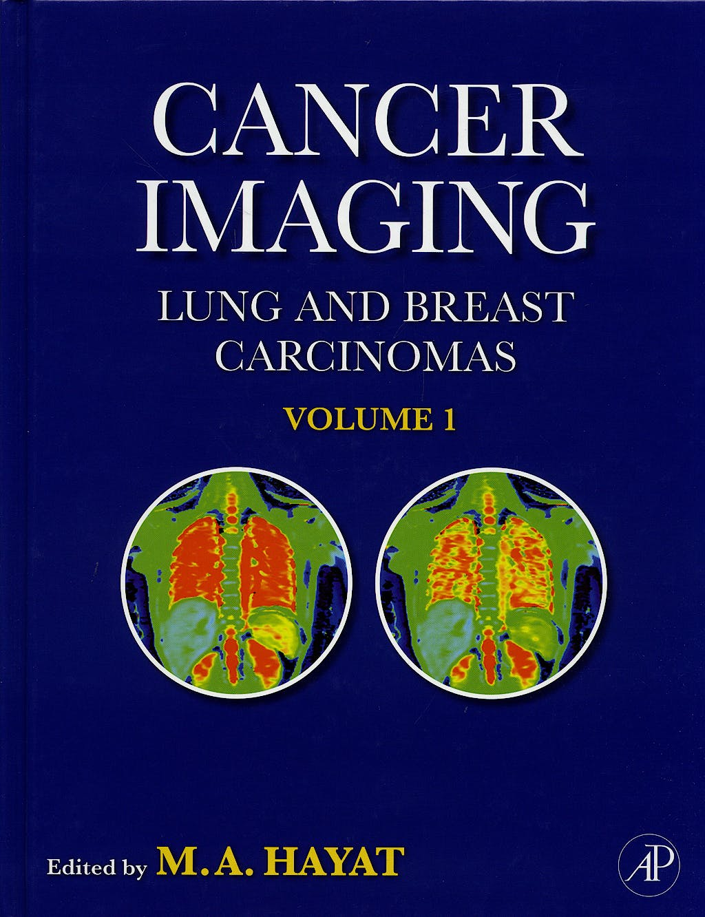 Portada del libro 9780123742124 Cancer Imaging. Lung and Breast Carcinomas, 2 Vols.
