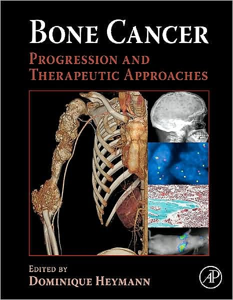 Portada del libro 9780123748959 Bone Cancer. Progression and Therapeutic Approaches