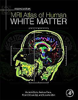 Portada del libro 9780123820815 Mri Atlas of Human White Matter