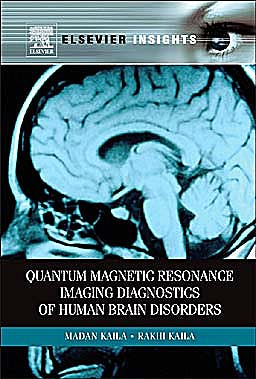 Portada del libro 9780123847119 Quantum Magnetic Resonance Imaging Diagnostics of Human Brain Disorders