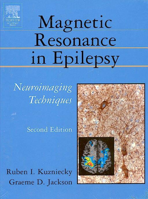 Portada del libro 9780124311527 Magnetic Resonance in Epilepsy: Neuroimaging Techniques