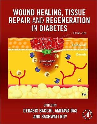 Portada del libro 9780128164136 Wound Healing, Tissue Repair, and Regeneration in Diabetes