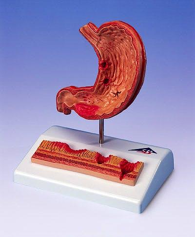 Estómago con Úlceras Gástricas