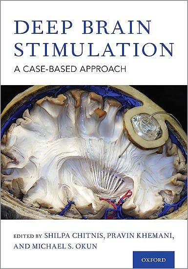 Portada del libro 9780190647209 Deep Brain Stimulation. A Case-based Approach