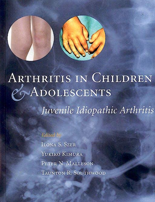 Portada del libro 9780192632920 Arthritis in Children & Adolescents: Juvenile Idiopathic Arthritis