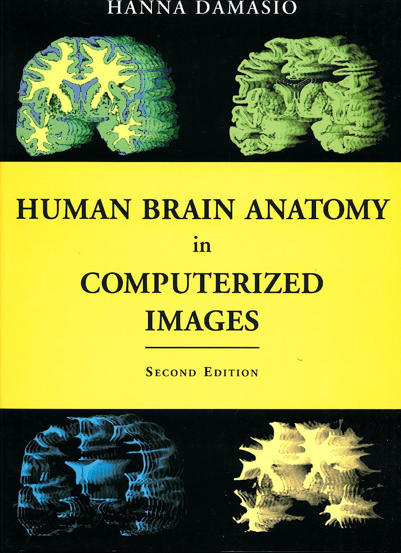 Portada del libro 9780195165616 Human Brain Anatomy in Computerized Images