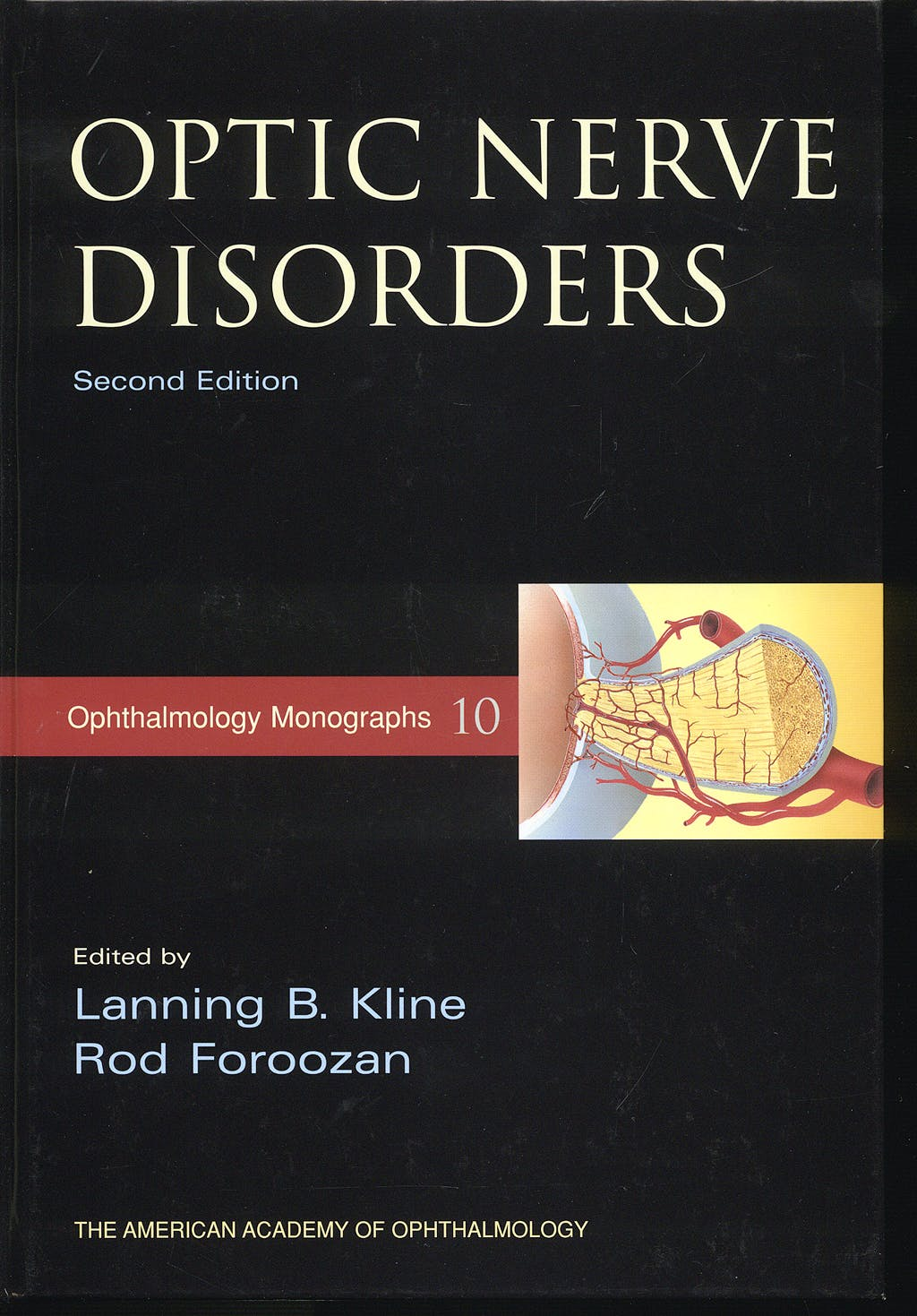 Portada del libro 9780195312812 Optic Nerve Disorders