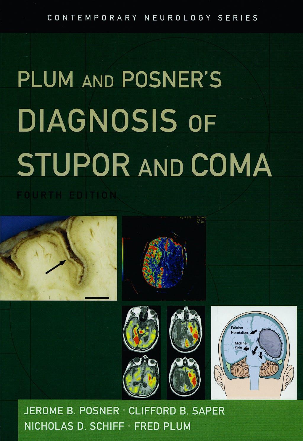 Portada del libro 9780195321319 Plum and Posner's Diagnosis of Stupor and Coma
