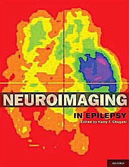 Portada del libro 9780195342765 Neuroimaging in Epilepsy