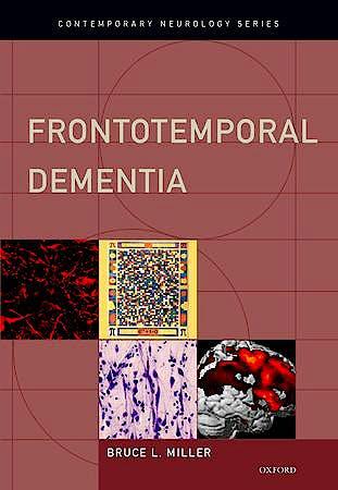Portada del libro 9780195380491 Frontotemporal Dementia (Contemporary Neurology Series)