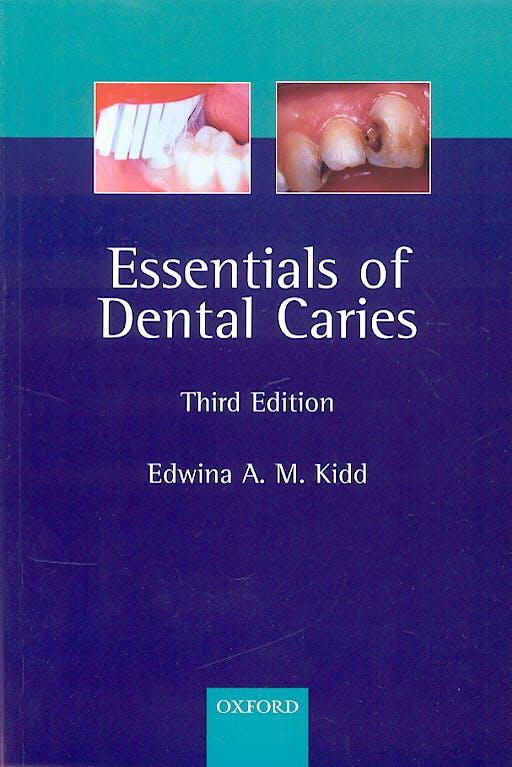 Portada del libro 9780198529781 Essentials of Dental Caries