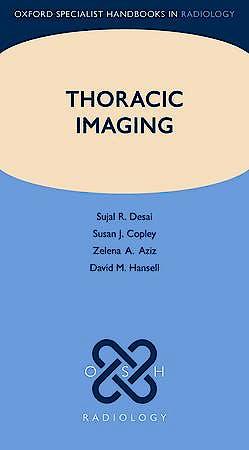 Portada del libro 9780199560479 Thoracic Imaging (Oxford Specialist Handbooks in Radiology)