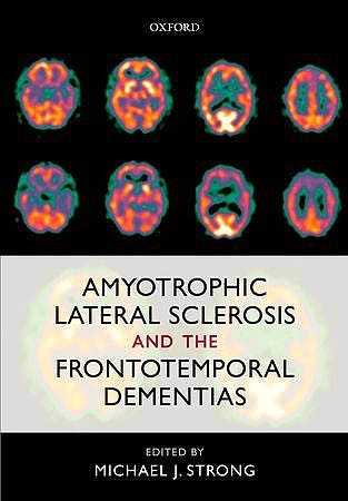 Portada del libro 9780199590674 Amyotrophic Lateral Sclerosis and the Frontotemporal Dementias