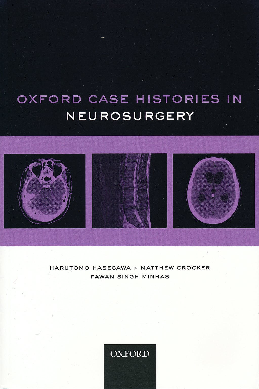 Portada del libro 9780199599837 Oxford Case Histories in Neurosurgery