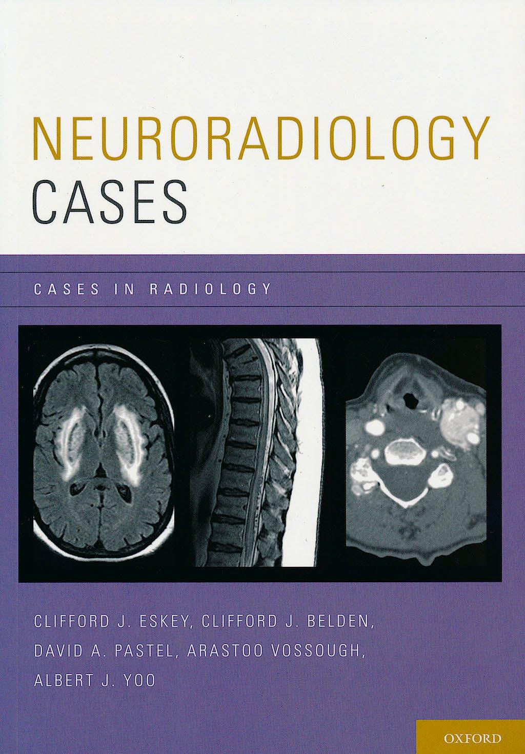 Portada del libro 9780199735983 Neuroradiology Cases. Cases in Radiology