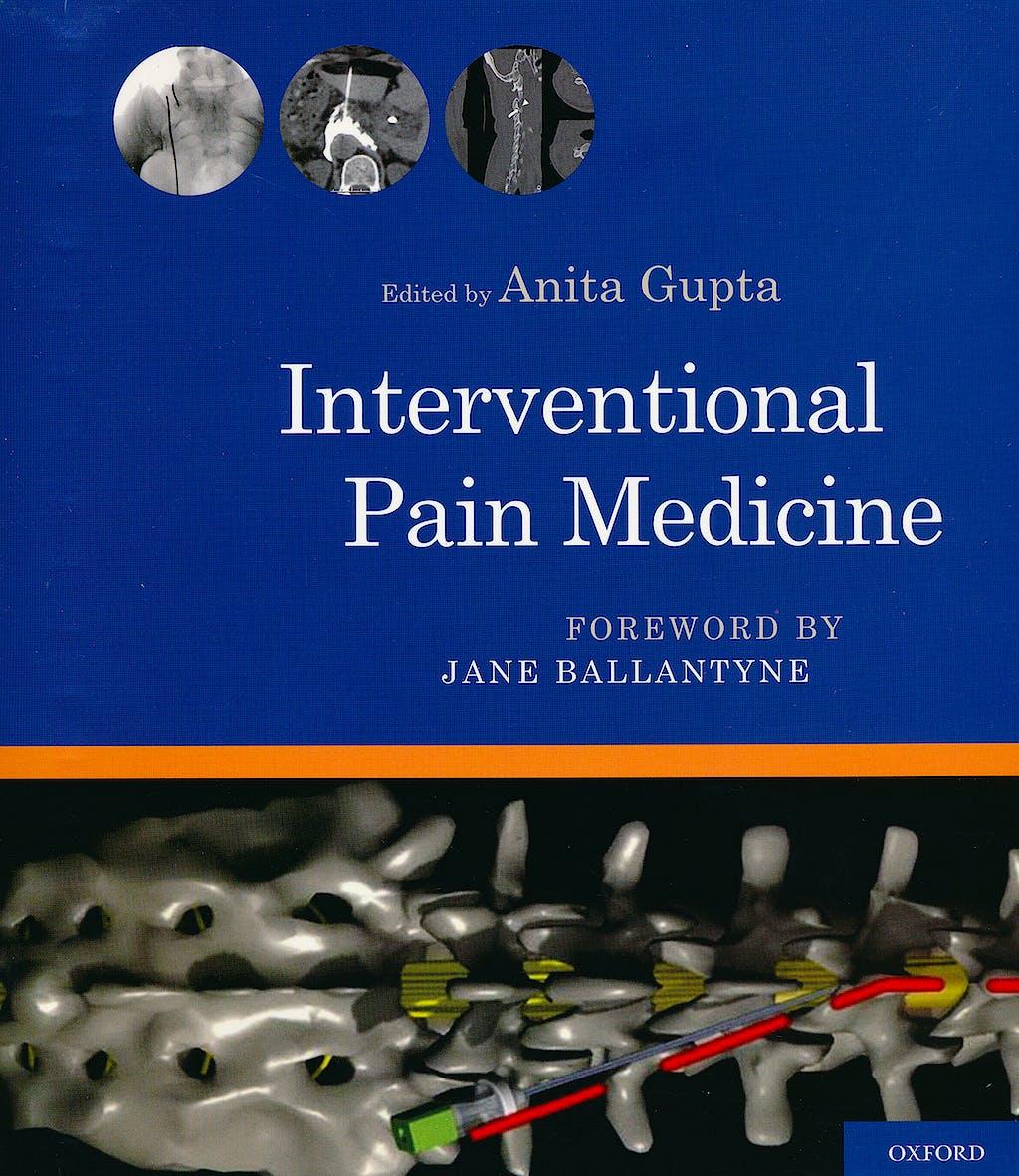 Portada del libro 9780199740604 Interventional Pain Medicine