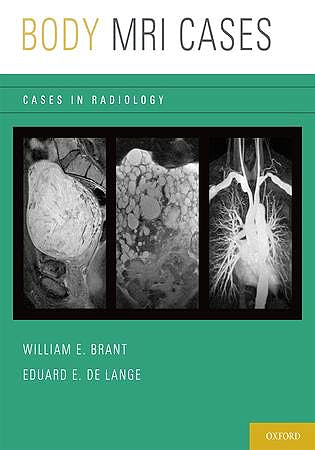 Portada del libro 9780199740710 Body Mri Cases