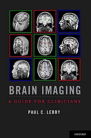 Portada del libro 9780199764679 Brain Imaging. a Guide for Clinicians