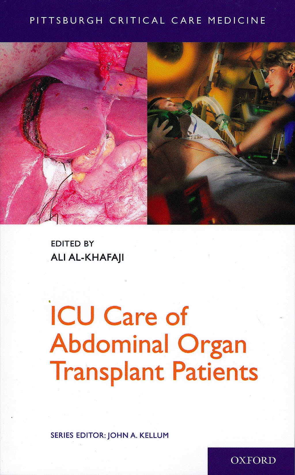 Portada del libro 9780199768899 Icu Care of Abdominal Organ Transplant Patients