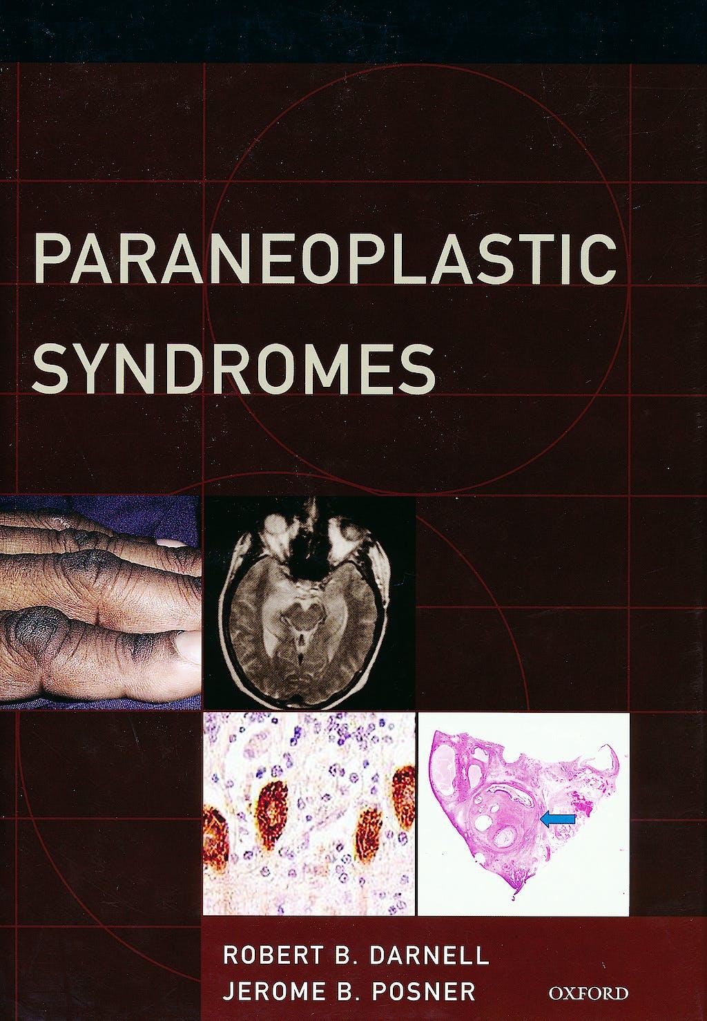 Portada del libro 9780199772735 Paraneoplastic Syndromes
