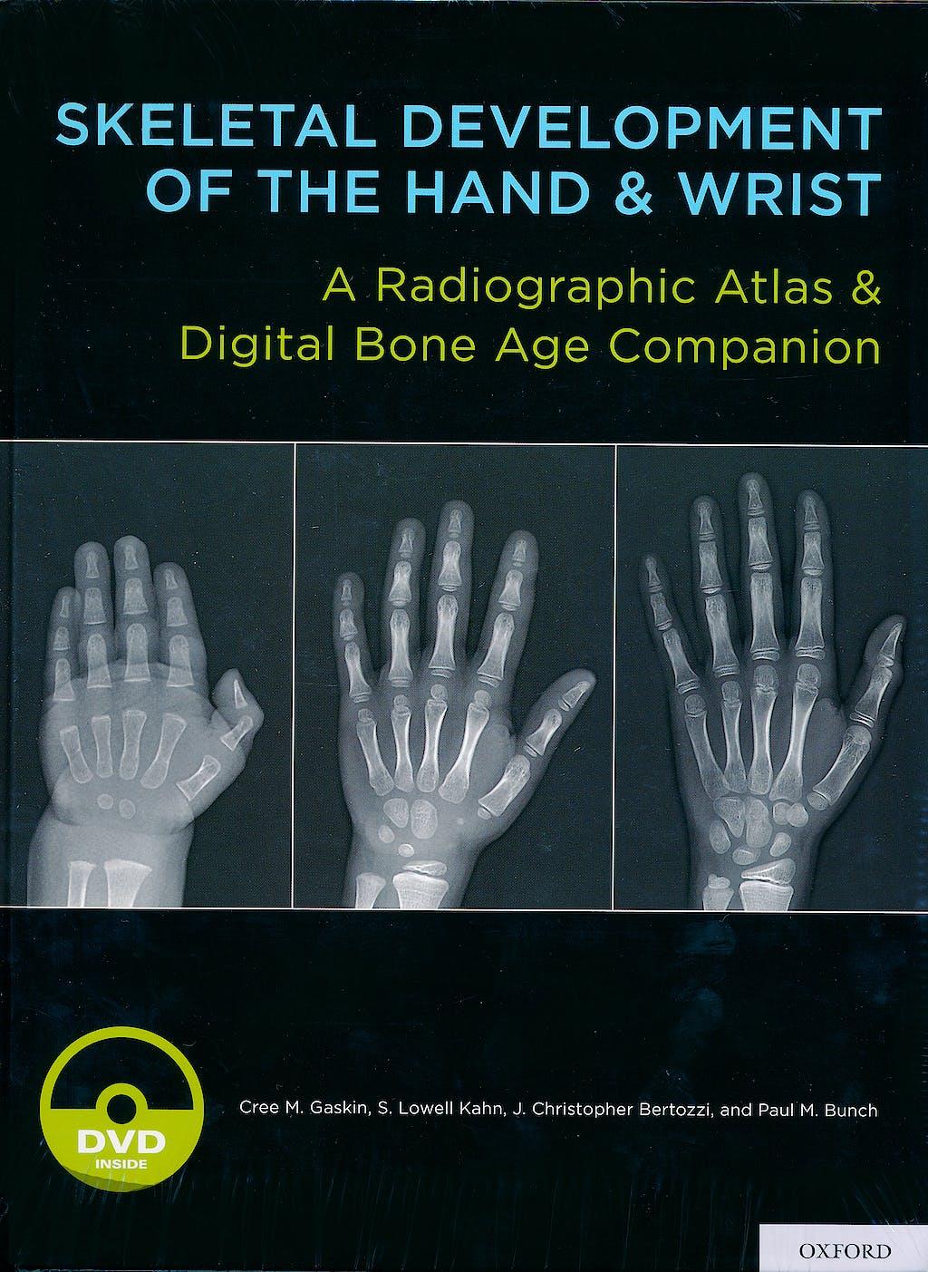 Portada del libro 9780199782055 Skeletal Development of the Hand and Wrist. A Radiographic Atlas and Digital Bone Age Companion + DVD