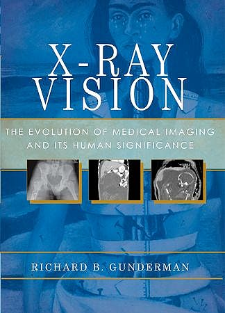 Portada del libro 9780199976232 X-Ray Vision. the Evolution of Medical Imaging and Its Human Significance