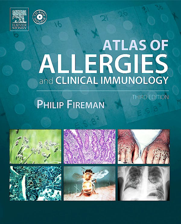Portada del libro 9780323024952 Atlas of Allergies and Clinical Immunology + Cd-Rom