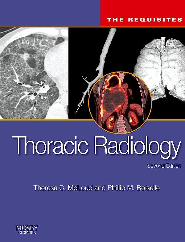 Portada del libro 9780323027908 Thoracic Radiology. the Requisites