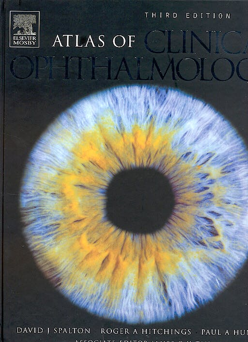 Portada del libro 9780323036566 Atlas of Clinical Ophthalmology + Cd-Rom