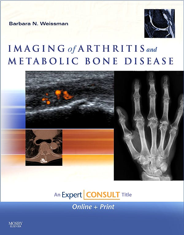 Portada del libro 9780323041775 Imaging of Arthritis and Metabolic Bone Disease
