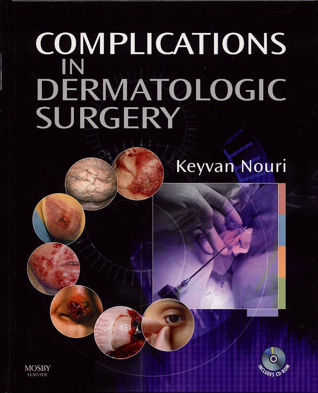 Portada del libro 9780323045469 Complications in Dermatologic Surgery + Cd-Rom