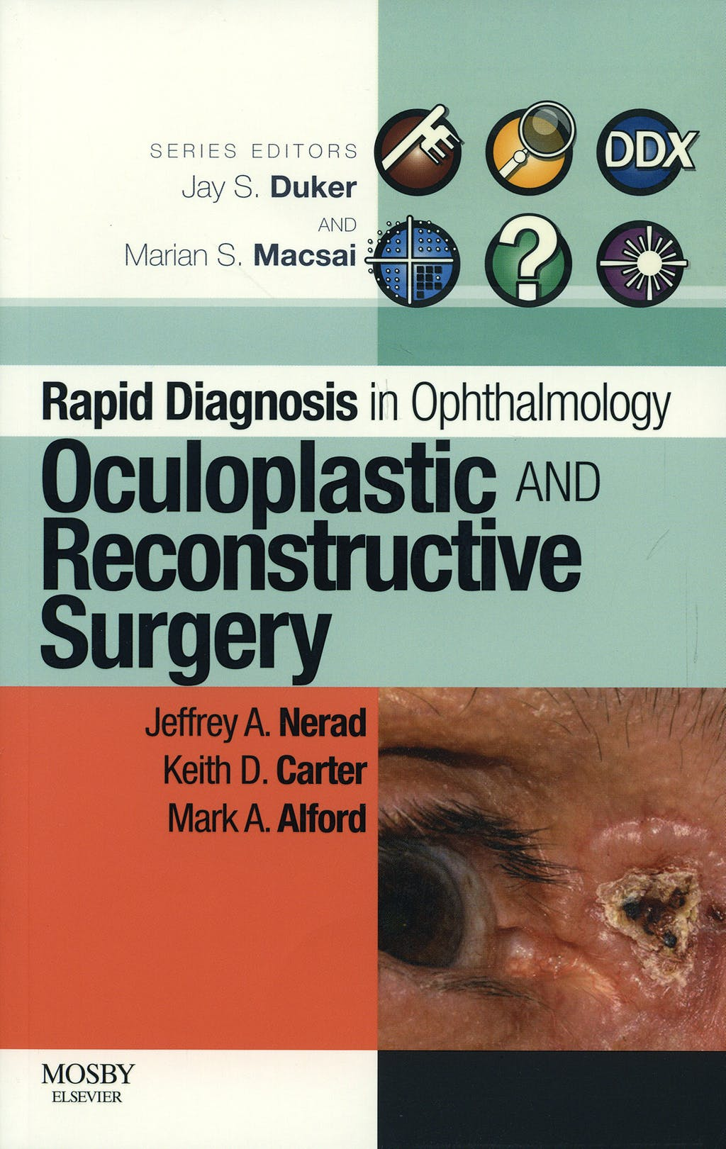 Portada del libro 9780323053860 Rapid Diagnosis in Ophthalmology. Oculoplastic and Reconstrutive Surgery