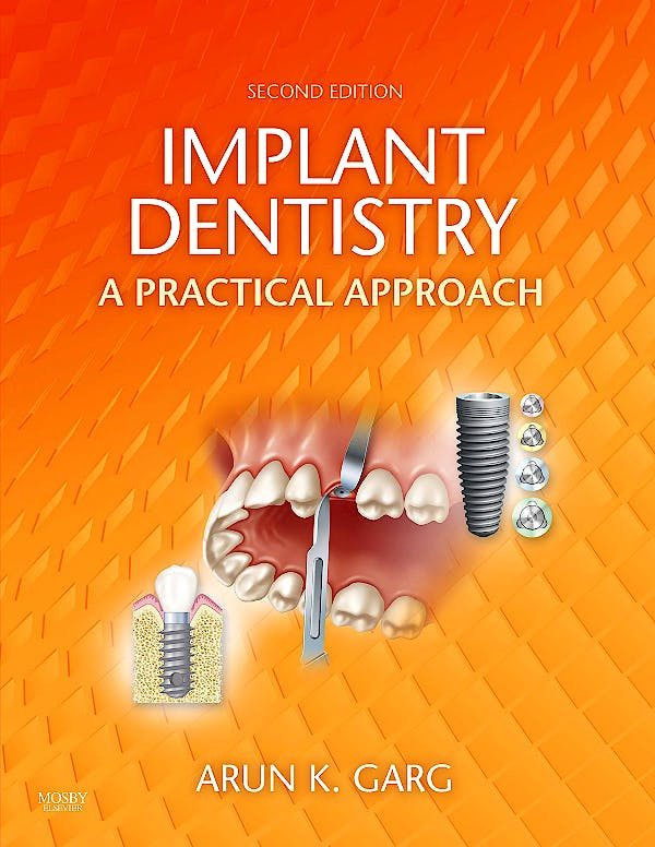 Portada del libro 9780323055666 Implant Dentistry. a Practical Approach