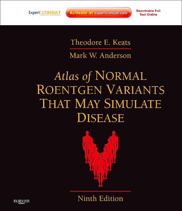 Portada del libro 9780323073554 Atlas of Normal Roentgen Variants That May Simulate Disease (Online and Print)