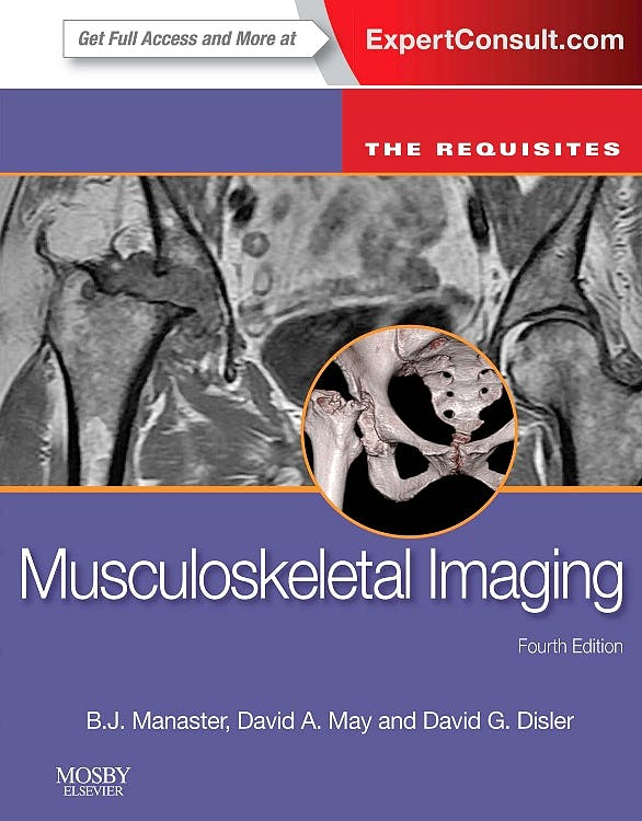 Portada del libro 9780323081771 Musculoskeletal Imaging. the Requisites (Online and Print)