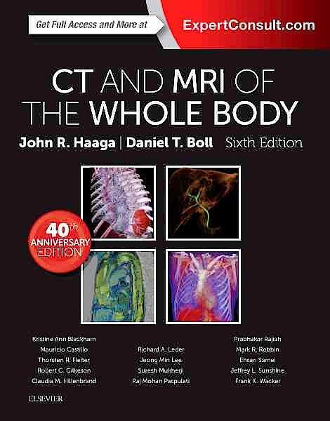 Portada del libro 9780323113281 CT and MRI of the Whole Body, 2 Vols. (Print + Online)