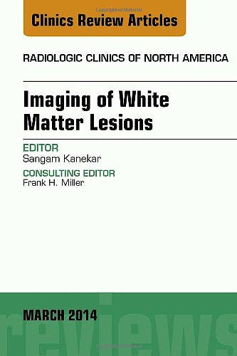 Portada del libro 9780323287203 Imaging of White Matter, an Issue of Radiologic Clinics of North America