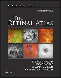Portada del libro 9780323287920 The Retinal Atlas (Online and Print)