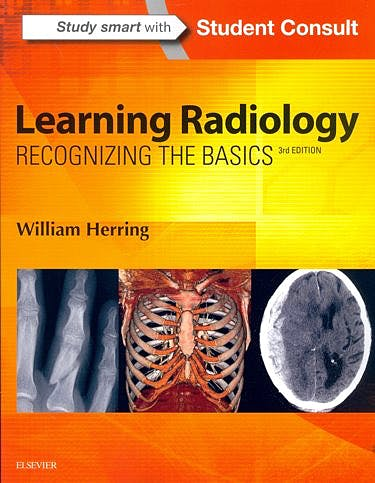 Portada del libro 9780323328074 Learning Radiology. Recognizing the Basics + Online Access